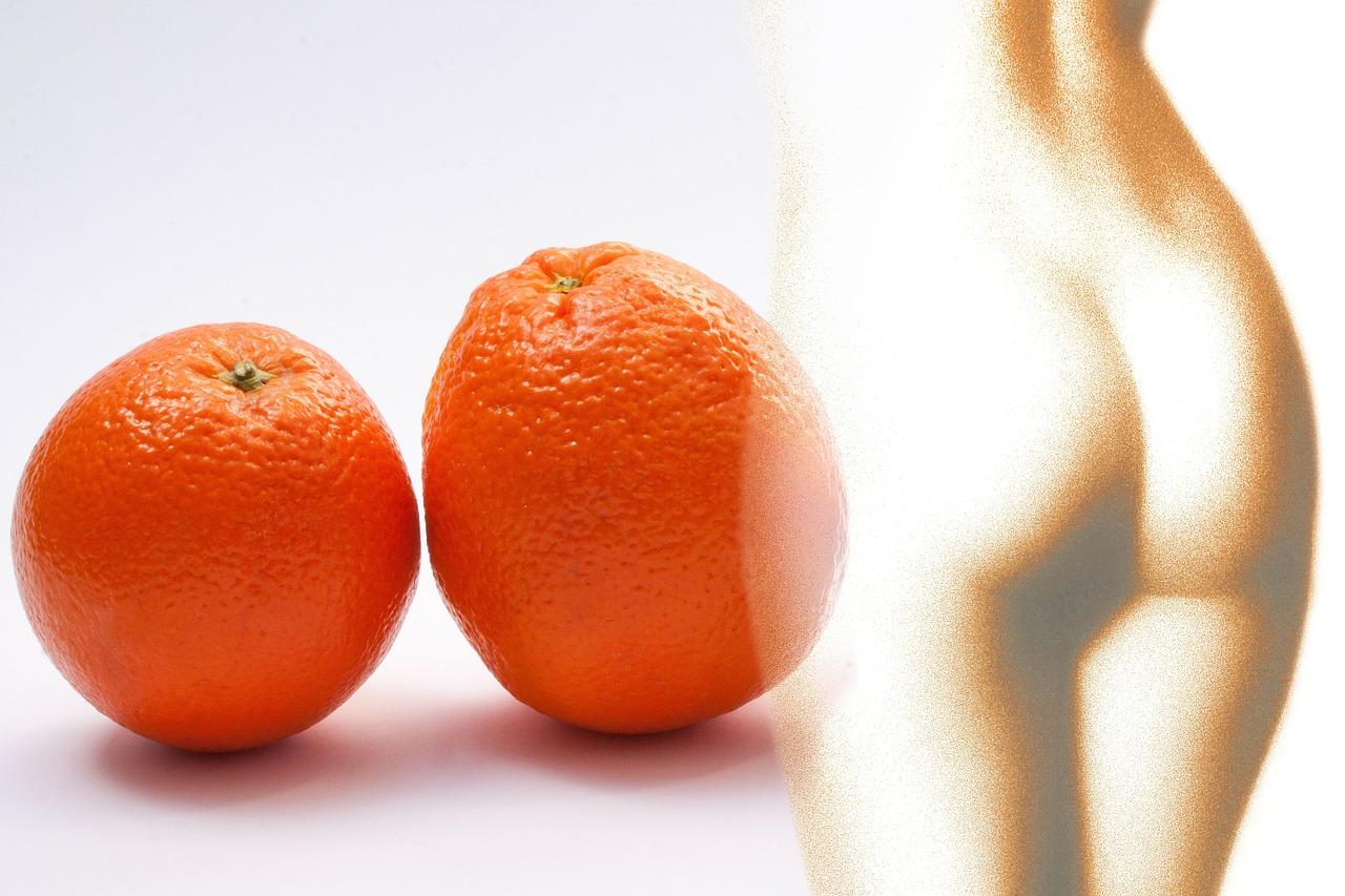combatir la celulitis o piel de naranja